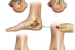 Achilles tendon repair technique for a product guide.