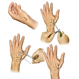 Thumb carpal-metacarpal arthritis repair using the ATLAS device after removal of the trapizium bone.