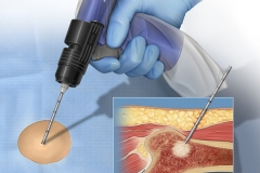 Illustration of a femoral bone lesion biopsy.
