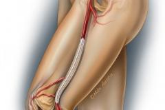 Drug eluting balloon in a peripheral artery