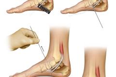 Flexor digitorum longus tendon transfer in the foot.