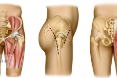 Hip Replacement Options
