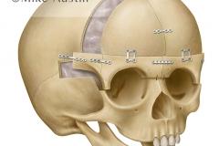Bifrontal Craniotomy