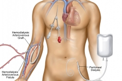 Types of Dialysis