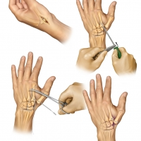 Thumb carpal-metacarpal arthritis repair using the ATLAS device after removal of the trapizium bone.