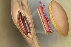Fibular Skin (free) Flap