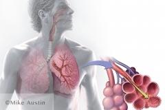 Pesticide Inhalation
