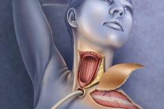 Esophageal Skin Flap