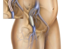 PAD Peripheral Artery Disease