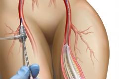 Balloon Angioplasty for Peripheral Artery Disease.