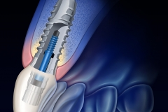 This illustration of a dental implant was created for product marketing.