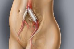 Iliac Artery Stents