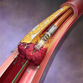 A device that depicts the removal of instent restenosis and thrombus.