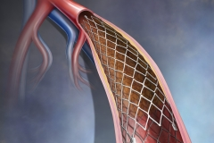 Peripheral Artery Stent