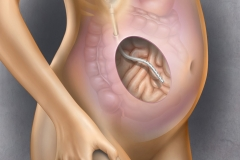 Implantable Peritoneal Port