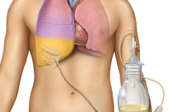Drainage catheter for pleural effusion.