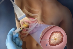 Cover illustration depicting a substance that's injected into a liver tumor for tumor ablation