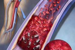 """Cover illustration for futuristic magnetic """"bots"""" that could work their way through thrombus occlusions"""